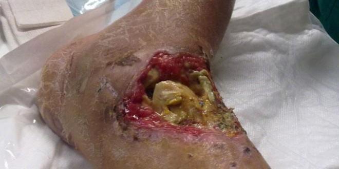 infezione osteoarticolare