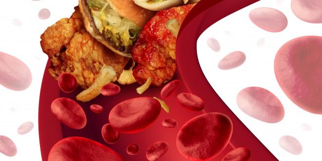Colesterolo, un italiano su tre ce l'ha alto. Record in Emilia e Sardegna