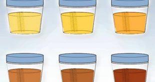 colore-urine